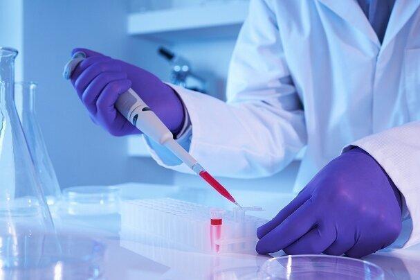 نخبگان برای خدمات آزمایشگاهی 90 درصد تخفیف دریافت می نمایند