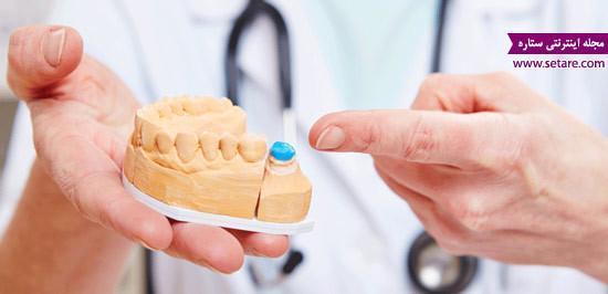 هزینه و قیمت روکش دندان چقدر است؟